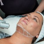 Talking Turkey: The Non-Surgical Treatment That Tackles Turkey Neck